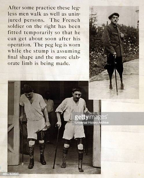 Soldiers with amputated legs during recovery 1919
