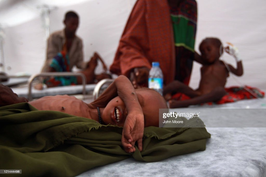 Somali children receive medical treatment at a Turkish field hospital on August 19, 2011 in Mogadishu, Somalia. The tented hospital, opened this week by the Turkish Ministry of Health, is located next to a large camp for Somalis displaced by famine and drought. Some 100,000 Somalis have fled famine conditions in the countryside to Mogadishu in the last three months, according to the UN, setting up makeshift shelters in camps throughout the capital.