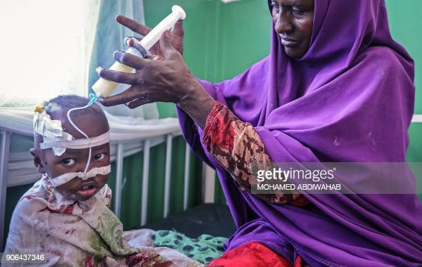 A Somali woman feeds her malnourished child on the bed where they wait for medical attention at the paediatric ward of Banadir public hospital where...
