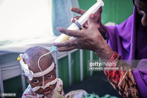 Somali woman feeds her malnourished child on the bed where they wait for medical attention at the paediatric ward of Banadir public hospital where...