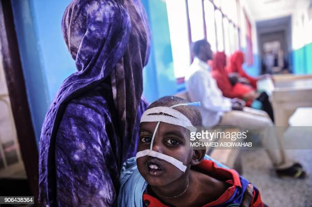 A Somali woman holds her malnourished child as they wait for medical attention at the paediatric ward of Banadir public hospital where refugees...