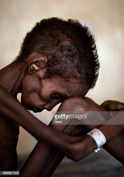 1989 Somalia A Somali child the victim of famine rests his weary head upon his knee In May 1988 conflict raged between the rebel group of the Somali...
