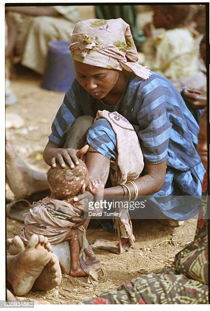 A Somalian mother cares for her starved child while living inside a faminesticken village outside of Baidoa where many drink and bathe from a muddy...