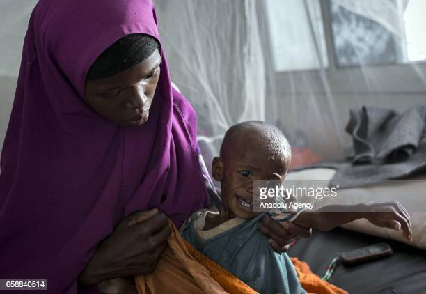 Somalian woman hold her little kid as they wait for medical treatment at Bay Regional Hospital in Baidoa, capital of Bay State of Somalia on March...