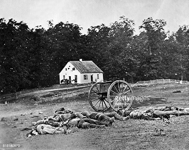 Some of the casualties from the Civil War Battle of Antietam, September 17, 1862. Total casualties for the day were 2,700 Rebels and 2,108 Federals....
