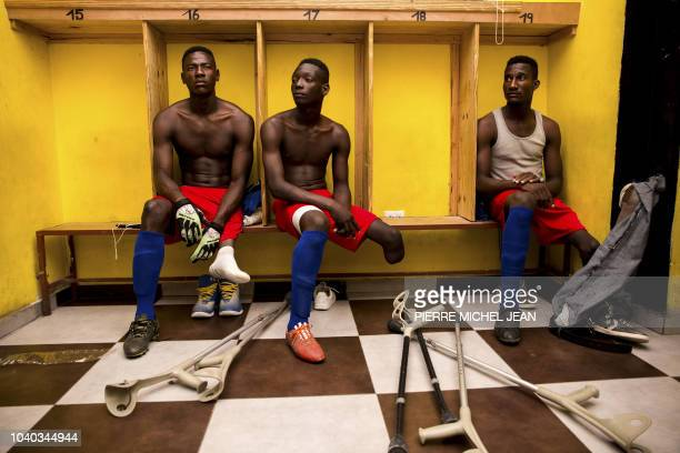 TOPSHOT Some players of the Haitian football selection of players with amputated limbs gather in the locker room of the Parc SainteThérèse in...