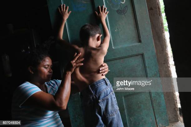 Sonia Morales massages the back of her son Jose Issac Morales at the door of their oneroom home on August 20 2017 in San Pedro Sula Honduras The...
