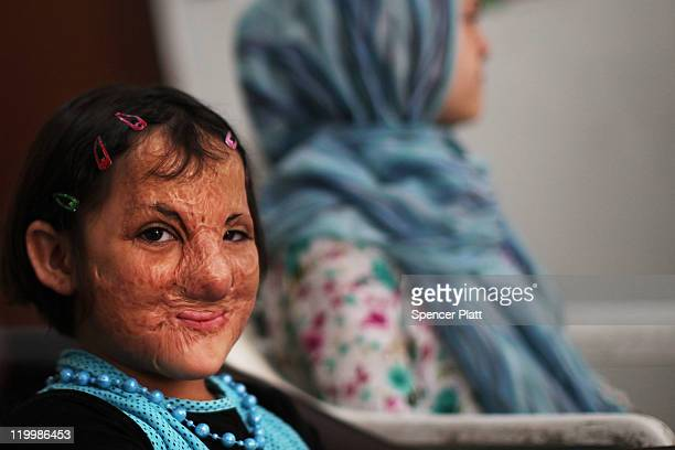 Sonor Darweesh of Kirkuk Iraq smiles while participating in a class with other young victims of Iraq violence at a program operated by Doctors...