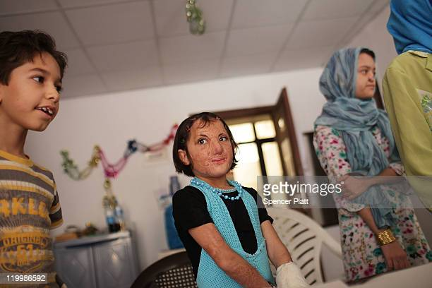 Sonor Darweesh of Kirkuk, Iraq smiles while participating in a class with other young victims of Iraq violence at a program operated by Doctors...