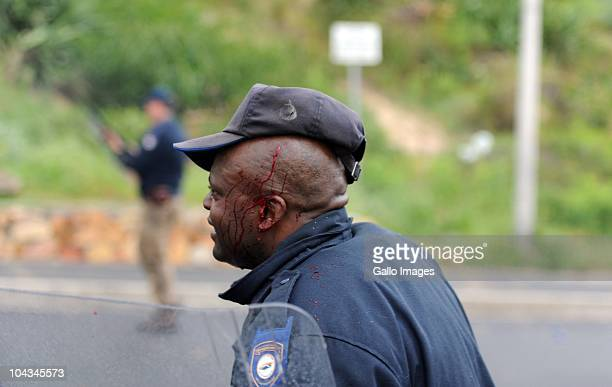 A South African is injured after violence broke out in Hout Bay near Cape Town South Africa on 21 September 2010 when community members clashed with...