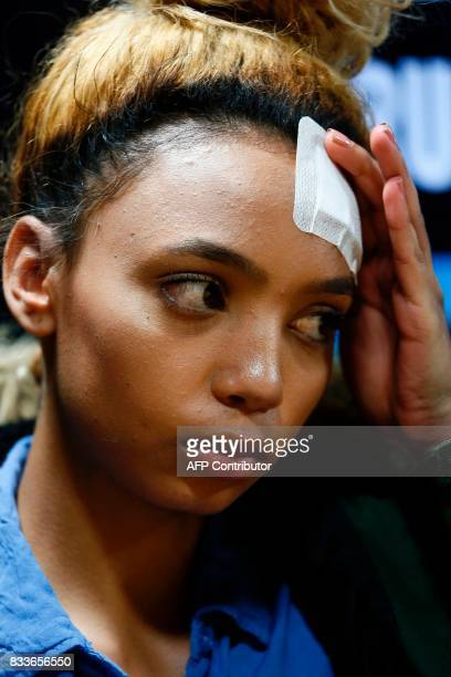 South African model Gabriella Engels allegedly assaulted by Zimbabwe First Lady Grace Mugabe reacts during a press conference at the civil rights...