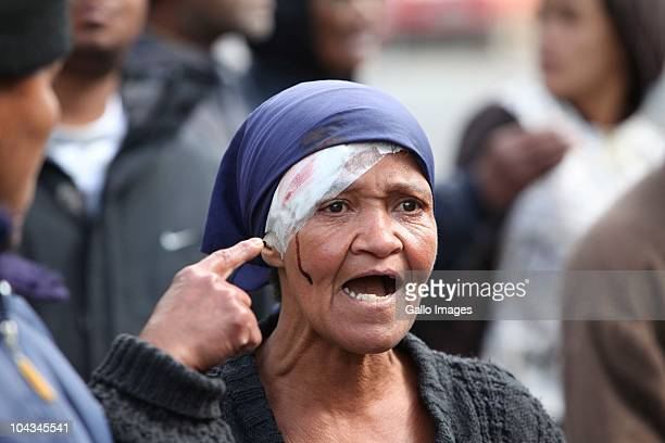 A South African woman gestures to the wound on her head after violence broke out in Hout Bay near Cape Town South Africa on 21 September 2010 when...