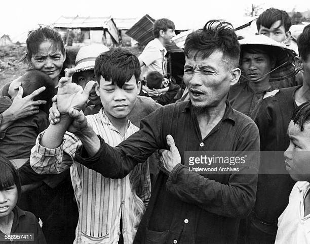 South Vietnamese peasant Do Chuc holds up the mutilated hand of his son Do Ba as he tells newsmen at the Song My Resettlement Center of the alleged...