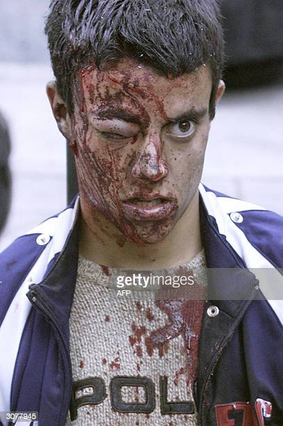 A victim waits for assistance after a train exploded at the Atocha train station in Madrid 11 March 2004 At least 198 people were killed and more...