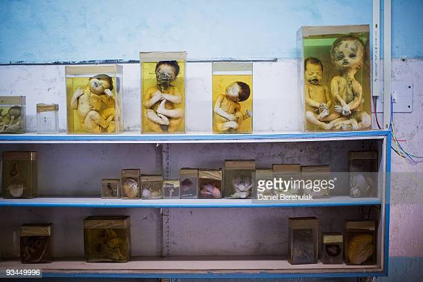 Specimens of aborted and deceased foetuses and infants are displayed as they are seen preserved in embalming fluid at a hospital on November 27 2009...