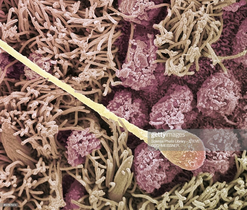 Sperm cell. Scanning electron microscope (SEM) : Stock-Foto