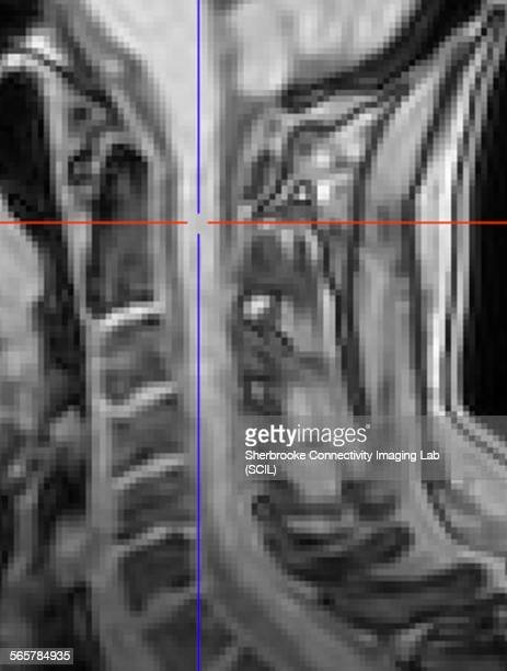 Spinal cord of a healthy control. Anatomical T1 weighted image