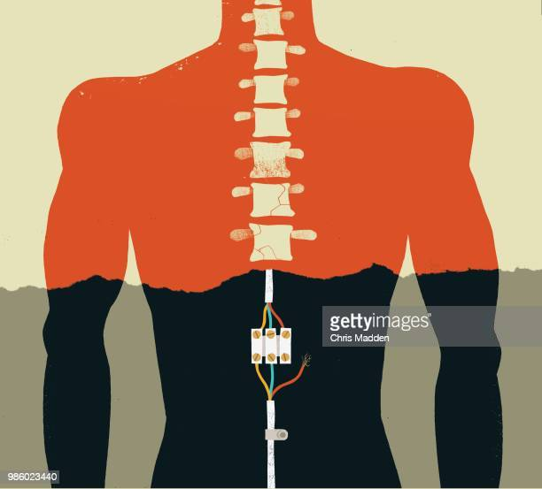 spinal injury - 麻痺 ストックフォトと画像