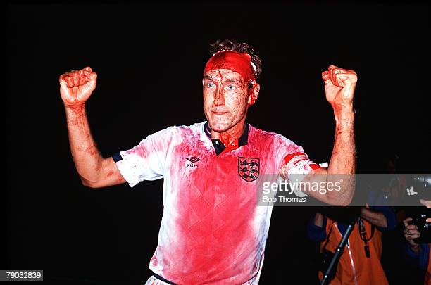 Sport Football World Cup Qualifier Stockholm 6th September 1989 Sweden 0 v England 0 England's Terry Butcher walks off the field covered in blood...