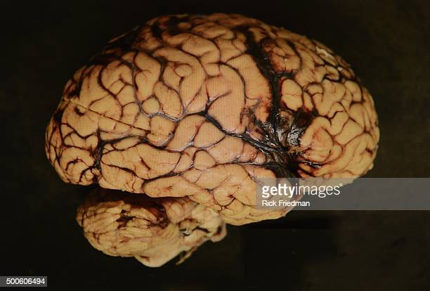Brain Injury Special Report View of formalinpreserved specimen with bleeding on the surface of the brain from a patient who died after traumatic...