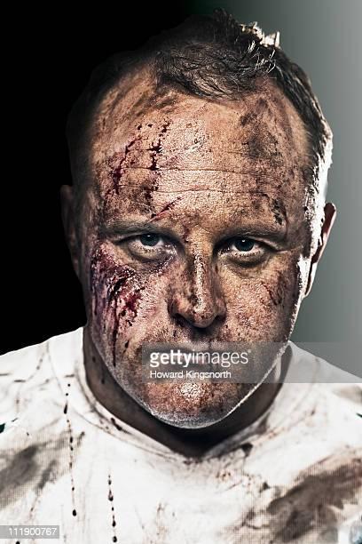 sportsman with bloody and bruised face - hombre golpeado fotografías e imágenes de stock