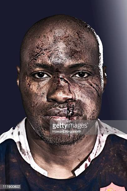 sportsman with bruised and bloodied face staring - hombre golpeado fotografías e imágenes de stock