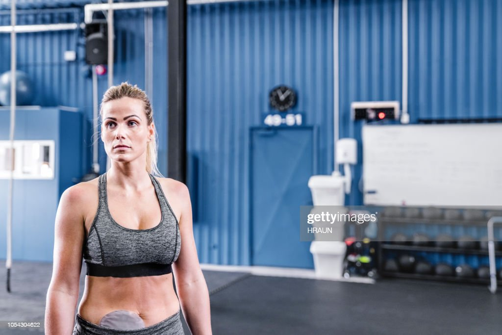 Sportswoman with stoma bag in gym : Stock Photo