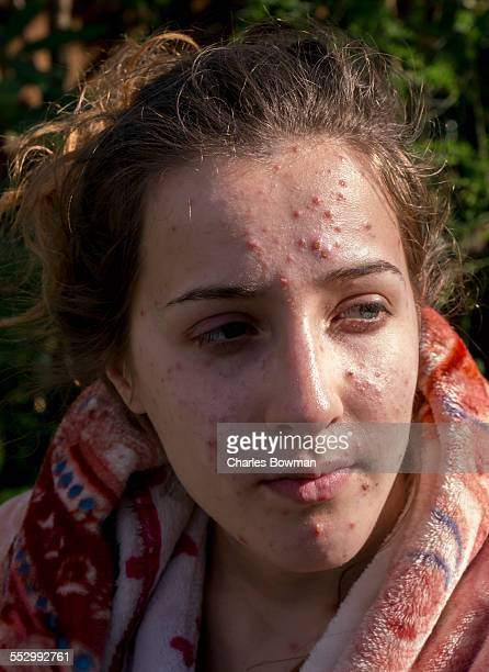 spots disfigure the face of a teenage  girl - ugly girl stock photos and pictures