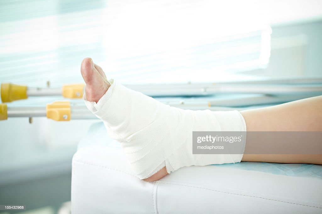 Sprain of a foot : Stock Photo