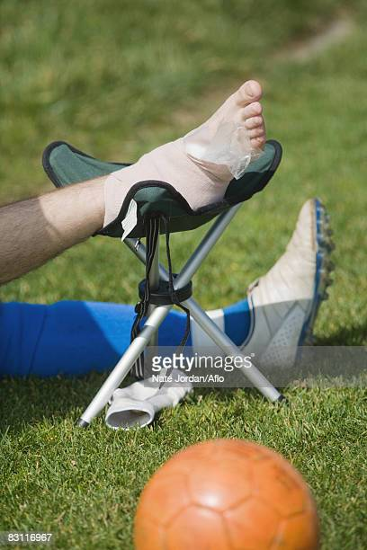 sprained ankle - swollen ankles stock pictures, royalty-free photos & images