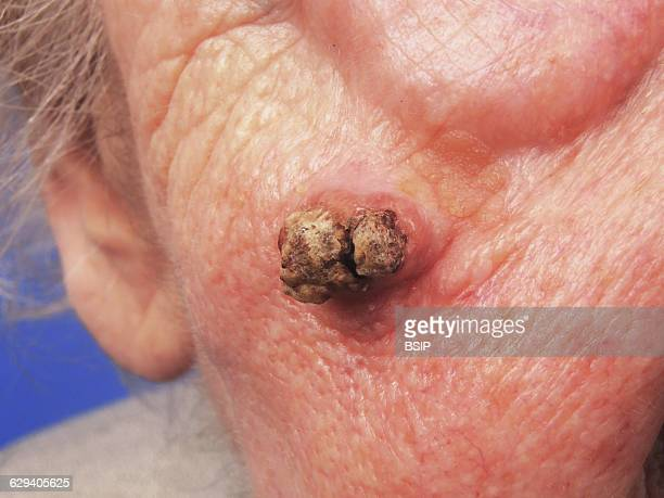 Squamous cell carcinoma of the cheek