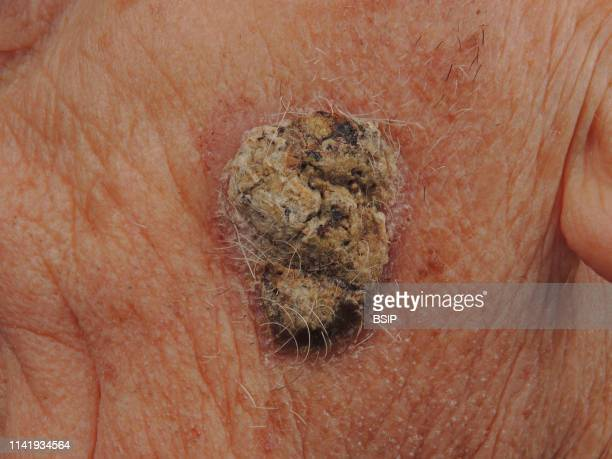 Squamous cell carcinoma on the cheek