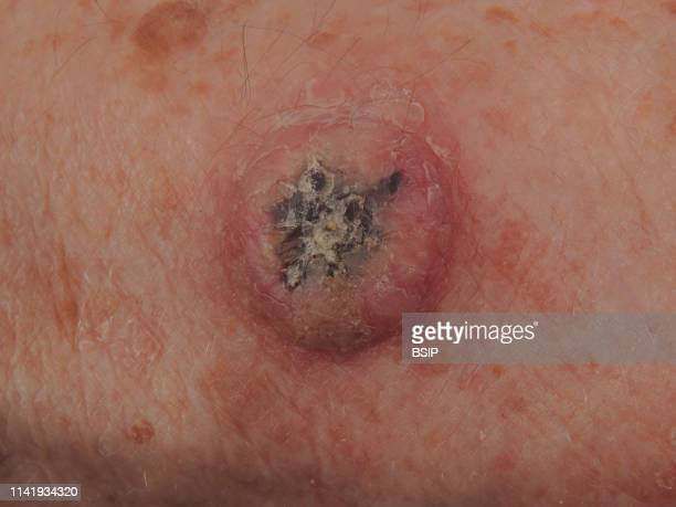 Squamouscell carcinoma of the forearm