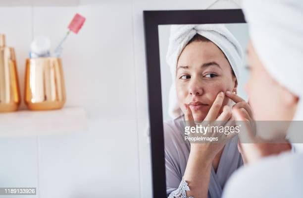squeezing pimples is kind of addictive - acne stock pictures, royalty-free photos & images