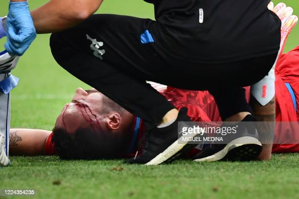Staff medic tends to Napoli's Colombian goalkeeper David Ospina after he collided with Atalanta's Italian defender Mattia Caldara during the Italian...