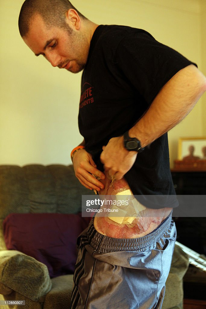 WOUNDED VETERANS : News Photo