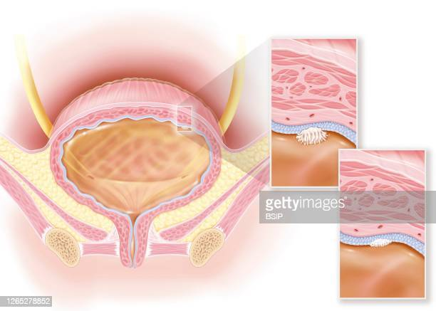 Stage 0a and 0is superficial bladder cancer urothelial and in situ carcinoma This illustration shows a woman's bladder with in the upper right of the...