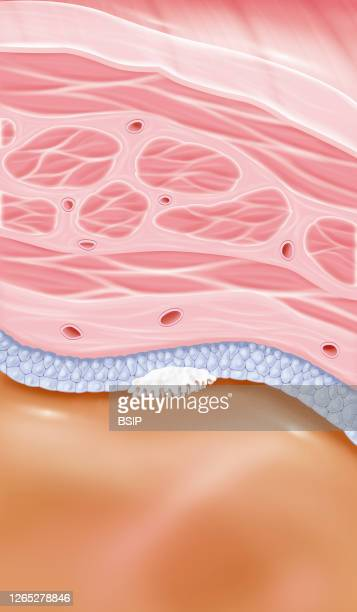 Stage 0a superficial bladder cancer This illustration shows a zoom at the level of the bladder wall with all its structures From bottom to top we...