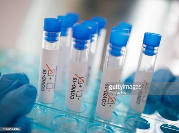 Staged photo Symbol photo Coronavirus diagnosis COVID19 SARSCoV2 on March 10 2020 in Berlin Germany