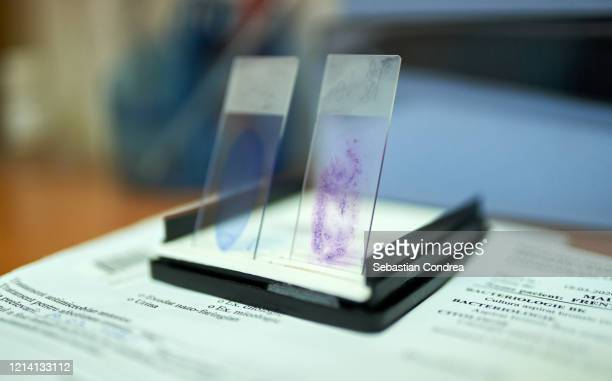 stained glass slides of peripheral blood smear with violet leishman giemsa stain in hematology pathology laboratory coronavirus, covid-19 respiratory syndrome coronavirus 2 (sars-cov-2) - sepsis stock pictures, royalty-free photos & images
