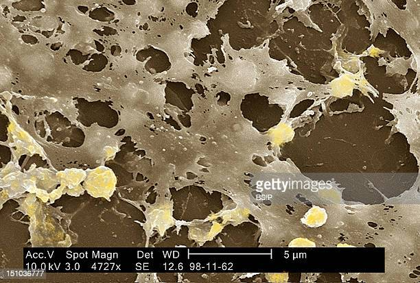 Staphylococcus Aureus In Biofilm Coming From The Inside Of A Permanent Urinary Catheter Colorized Sem X 4 727 The Bar Represents 5 Microns A Biofilm...
