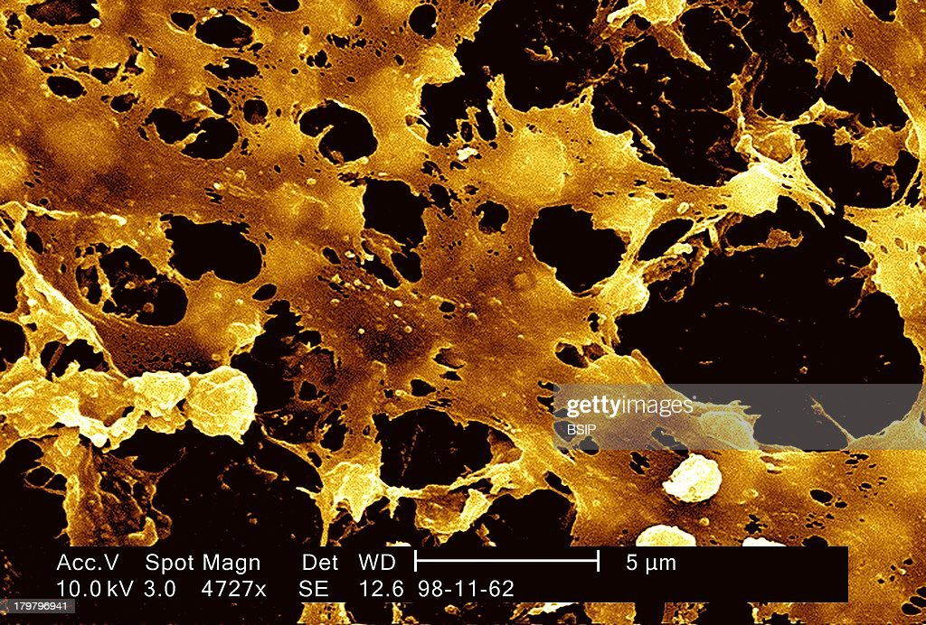 Staphylococcus Aureus Sem : News Photo