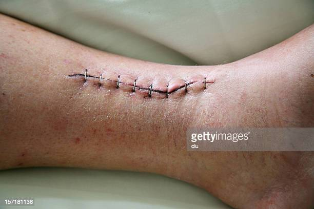 stapled wound - images of ugly feet stock photos and pictures