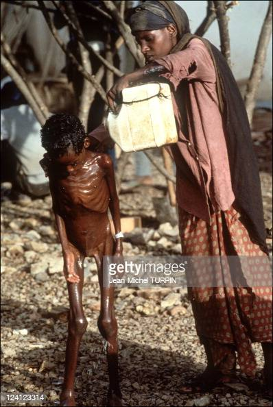 Starvation In Baidoa Somalia On August 22 1992 Pictures