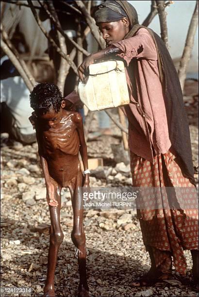 Starvation in Baidoa Somalia on August 22 1992 In Baidoha
