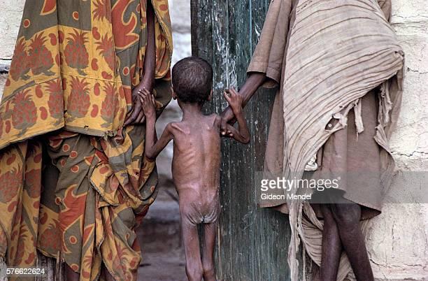 starving child - femme maigre photos et images de collection