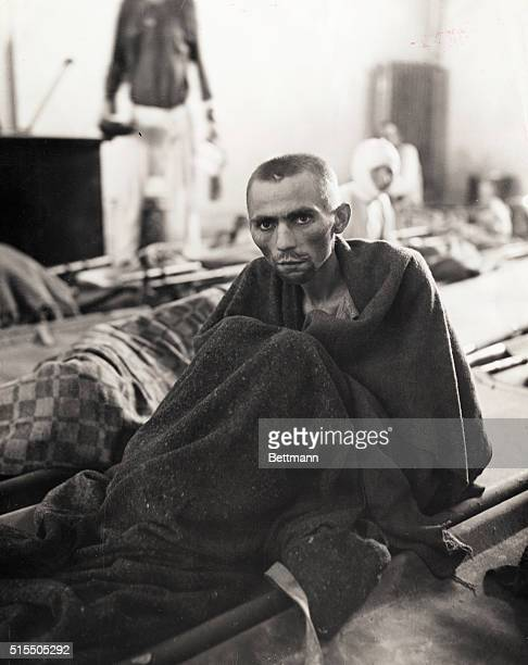 A starving inmate at Gusen Concentration Camp a subdivision of Mauthausen Camp near Linz Austria Most inmates were slave labor at a nearby stone...