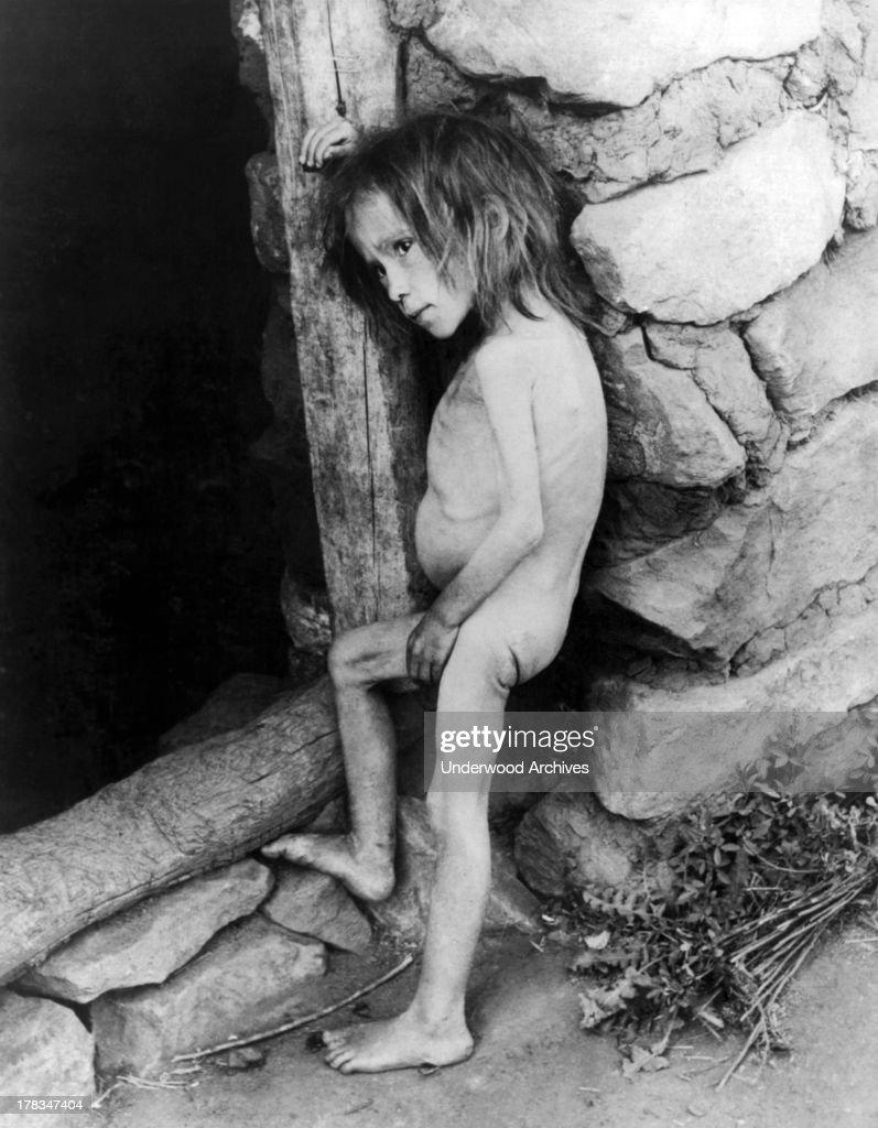 Starving Child : Photo d'actualité