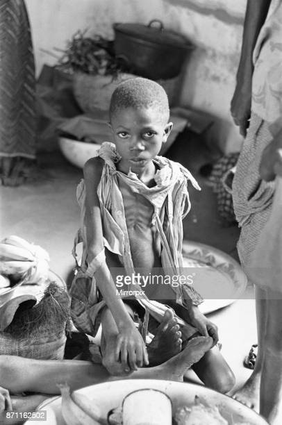 A staving child showing all the classic symptoms of malnutrition seen here in Umuahia just a few of the estimated one to two million victims of the...