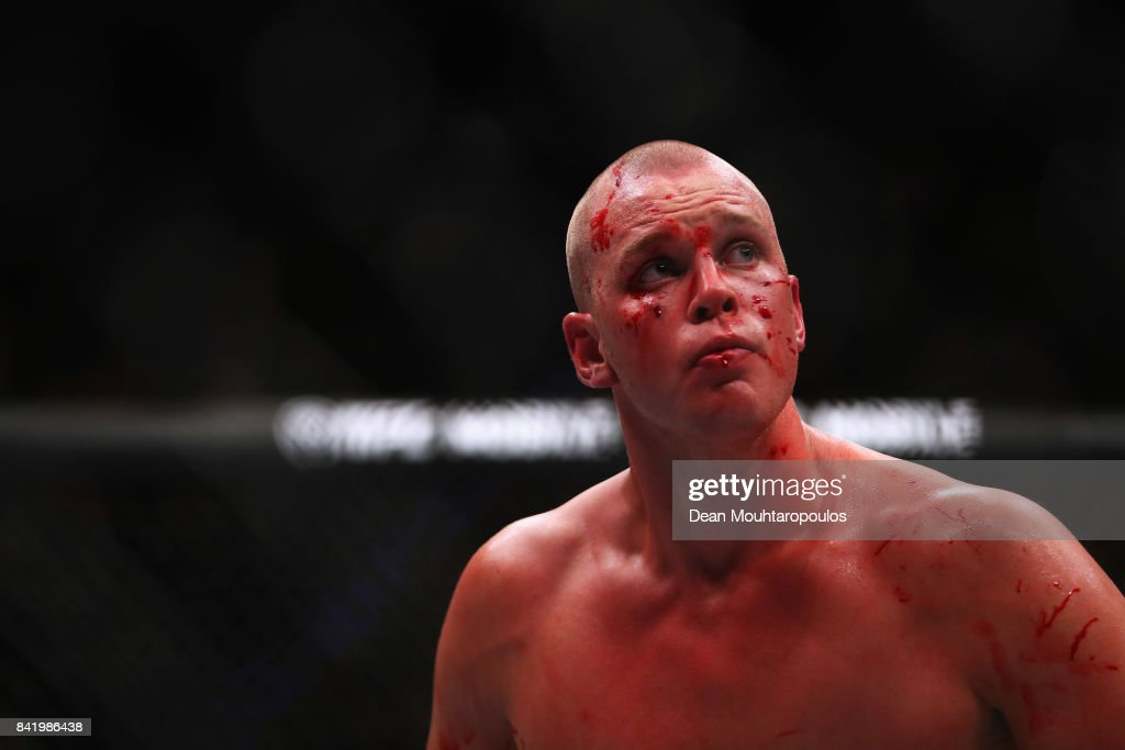 Stefan Struve of the Netherlands walks to his corner with blood on his face against Alexander Volkov of Russia in their Heavyweight bout during the UFC Fight Night at Ahoy on September 2, 2017 in Rotterdam, Netherlands.